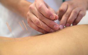 Akupunktur am Rücken