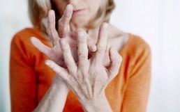 Frau mit Rheumaschmerzen in den Fingergelenken
